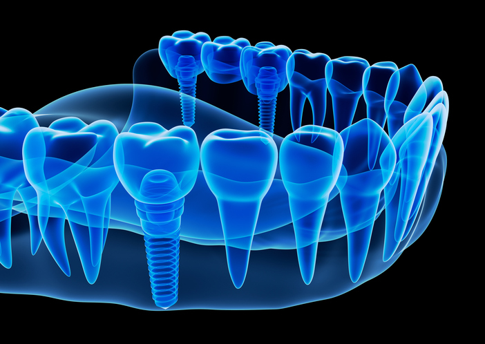 X-ray view of denture with implant , 3D illustration.